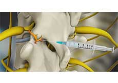 Medial Branch Block Injections
