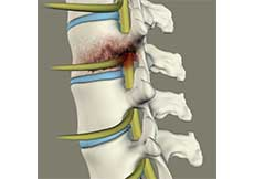 Spinal Infection Debridement